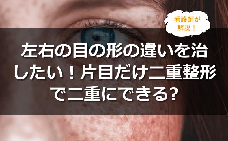 左右の目の形が違うのを治したい!二重整形で片目だけ二重にしてもらうことはできる?